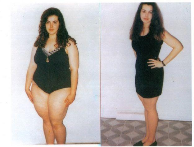 Perdida de peso drastica